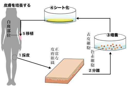 メラノサイトを保持した培養表皮移植