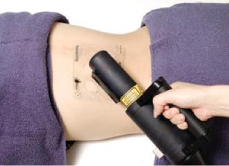 エキシマライトVTRAC白斑改善(光線療法・保険適応)