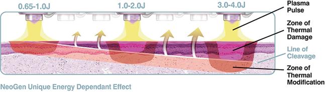 プラズマにおける皮膚再生の前進