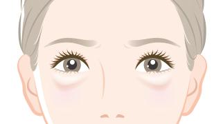 目の下のふくらみ