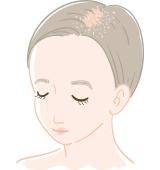 粃糠性(ひこうせい)脱毛症・脂漏性(しろうせい)脱毛症