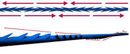 おすすめの治療方法:糸による治療