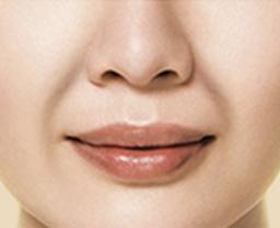 S型 ほうれい線(皮膚たるみ型 Skin type)